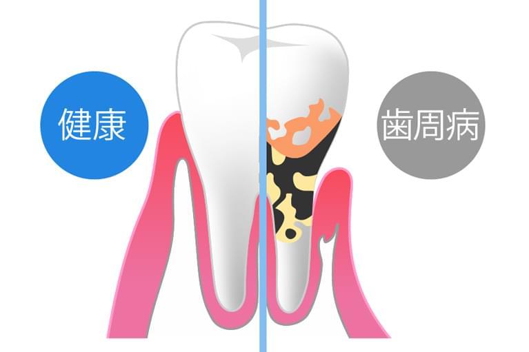 歯周病がなぜ怖いのか